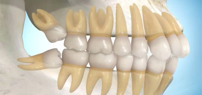 What Means Impacted Wisdom Teeth Wisdom Teeth Removal